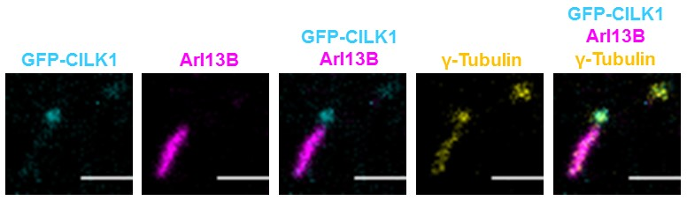 GFP-CILK1 localizes to the base of the primary cilium. NIH-3T3 cells were transfected with GFP-CILK1 and immunostained for the cilium and the centriole with anti-Arl13B and anti-γ-tubulin, respectively. Pseudocolors for GFP-CILK1 (cyan), Arl13B (magenta), and γ-tubulin (yellow) were used to facilitate visualization. Scale bar, 2µm.