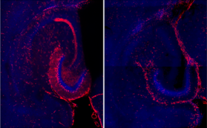 diagram showing Active neurons (red) in hippocampus following neonatal hypoxia ischemia (left) vs. control (right).