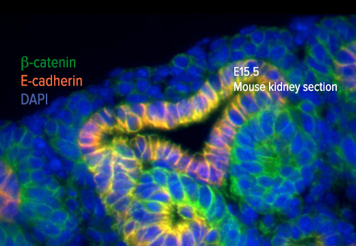 "<a href=""http://research.med.virginia.edu/pcen/main-projects/project-2/""><p>Epigenetic mechanisms of nephron progenitor cell renewal and fate.</p></a>"